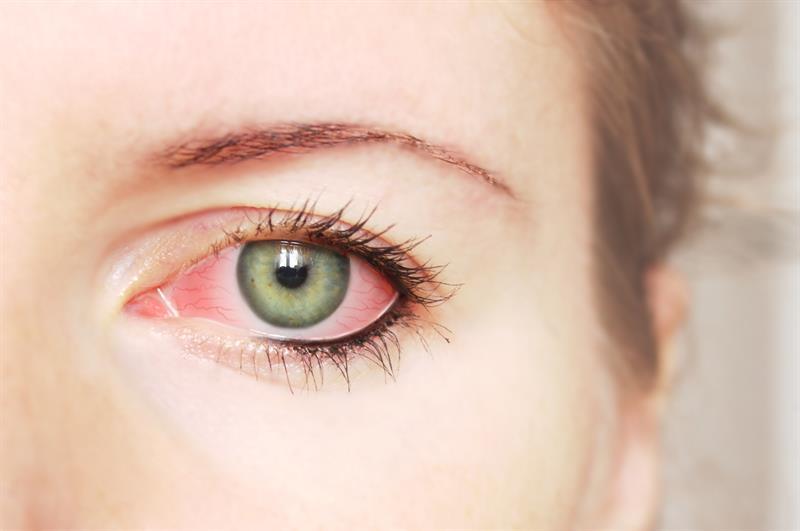 Göz Nezlesi Nasıl Oluşur?