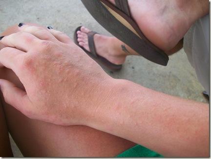 Güneş alerjisi, yanıkla karıştırılabiliyor