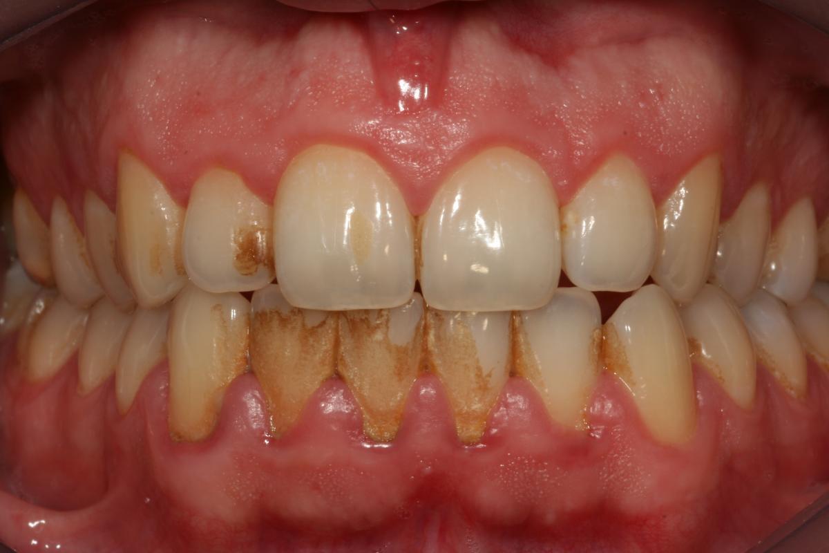 Hurma Dişlerinizi Çürütmesin
