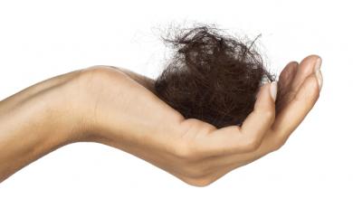 Saç Neden Dökülür? Saç Dökülmesinin 5 Nedeni!